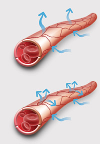 Causes of fluid retention - graphic