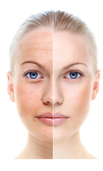 Why skin ages - image
